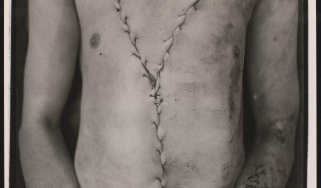 Torso, Murdered man, 1972-1974